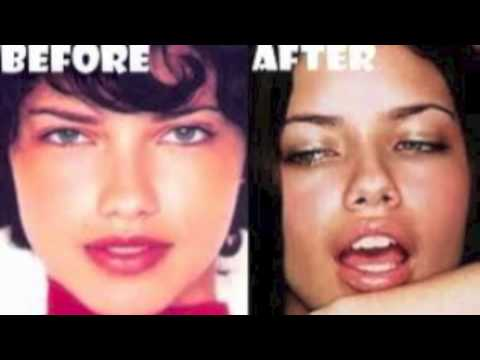 Marilyn Monroe Plastic Surgery Before And After photo - 1