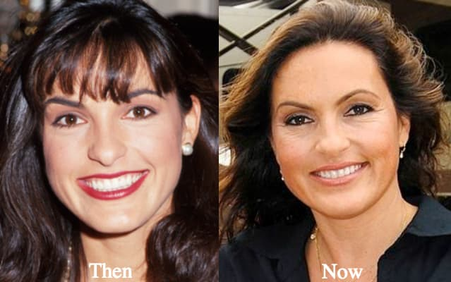 Mariska Hargitay Plastic Surgery Before And After photo - 1