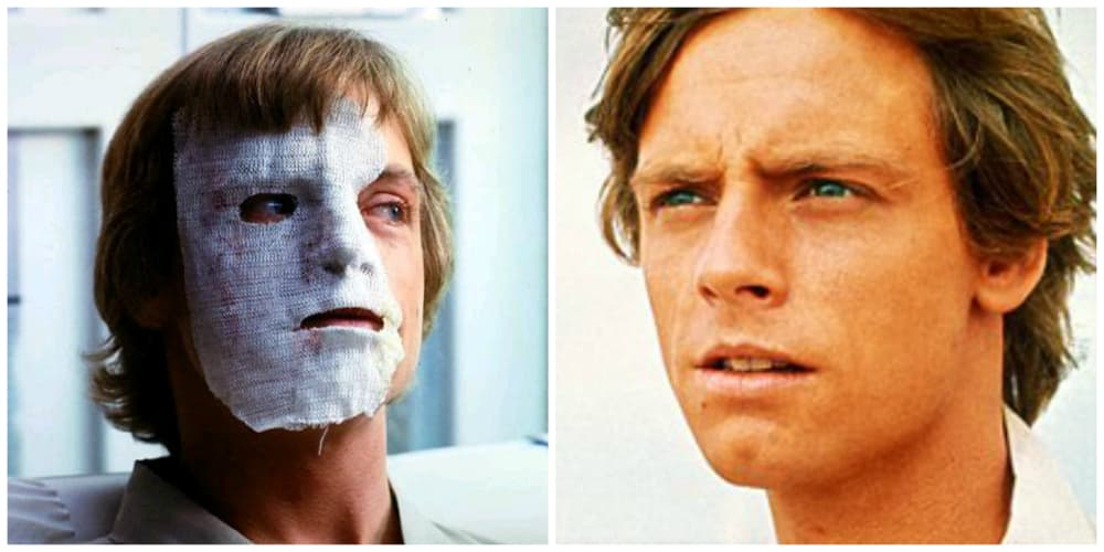 Mark Hamill Before And After Plastic Surgery photo - 1