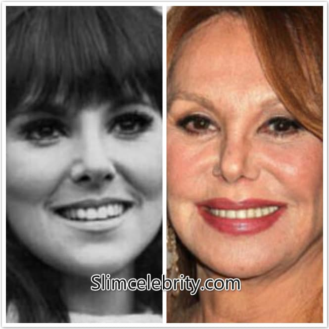Marlo Thomas Before Plastic Surgery photo - 1