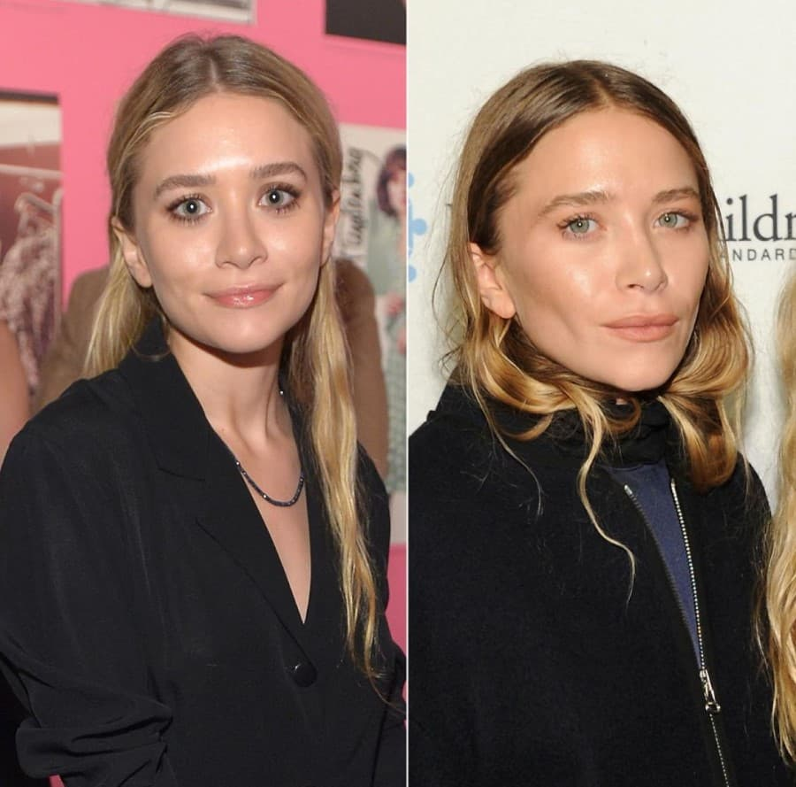 Mary Kate Olsen Plastic Surgery Before After photo - 1