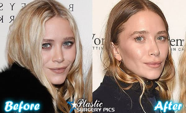 Mary Kate Olsen Plastic Surgery Before And After photo - 1