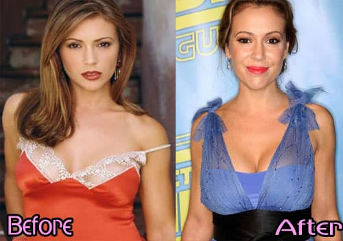 Mary Mccormack Plastic Surgery Before And After photo - 1