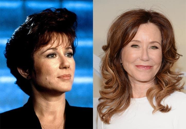 Mary Mcdonnell Plastic Surgery Before And After photo - 1