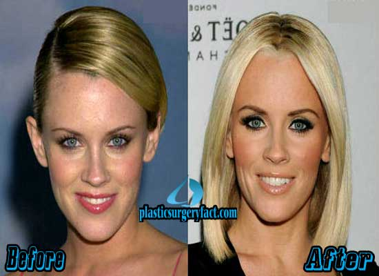 Mccarthy Before And After Plastic Surgery Pics photo - 1