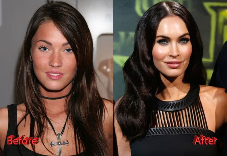 Meagan Fox Before Plastic Surgery photo - 1