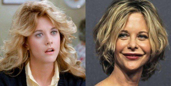 Meg Ryan Before After Plastic Surgery photo - 1