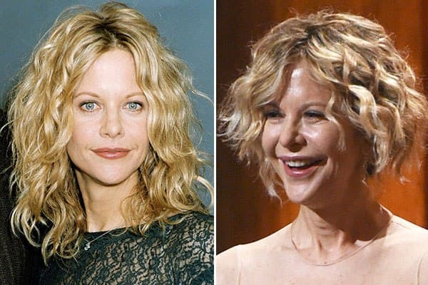 Megan Ryan Before And After Plastic Surgery 2015 photo - 1