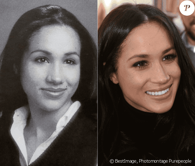 Meghan Markle Before And After Plastic Surgery photo - 1