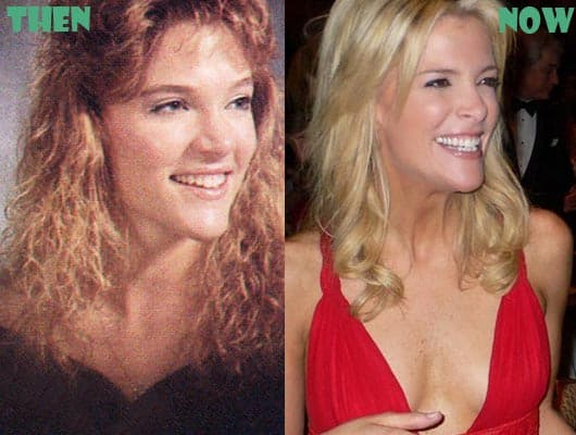 Megyn Kelly Plastic Surgery Before And After photo - 1