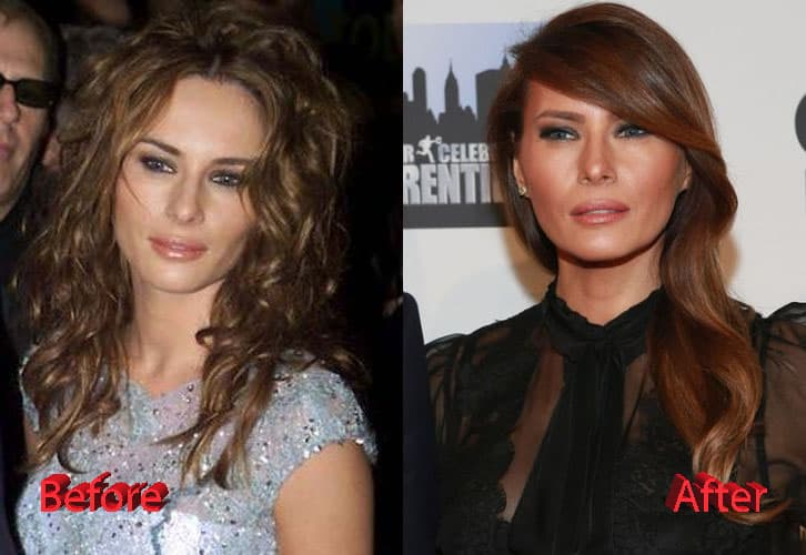 Melania Knauss Before After Plastic Surgery photo - 1