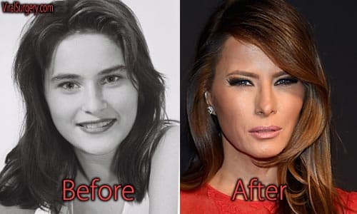 Melania Trump Plastic Surgery Before After photo - 1