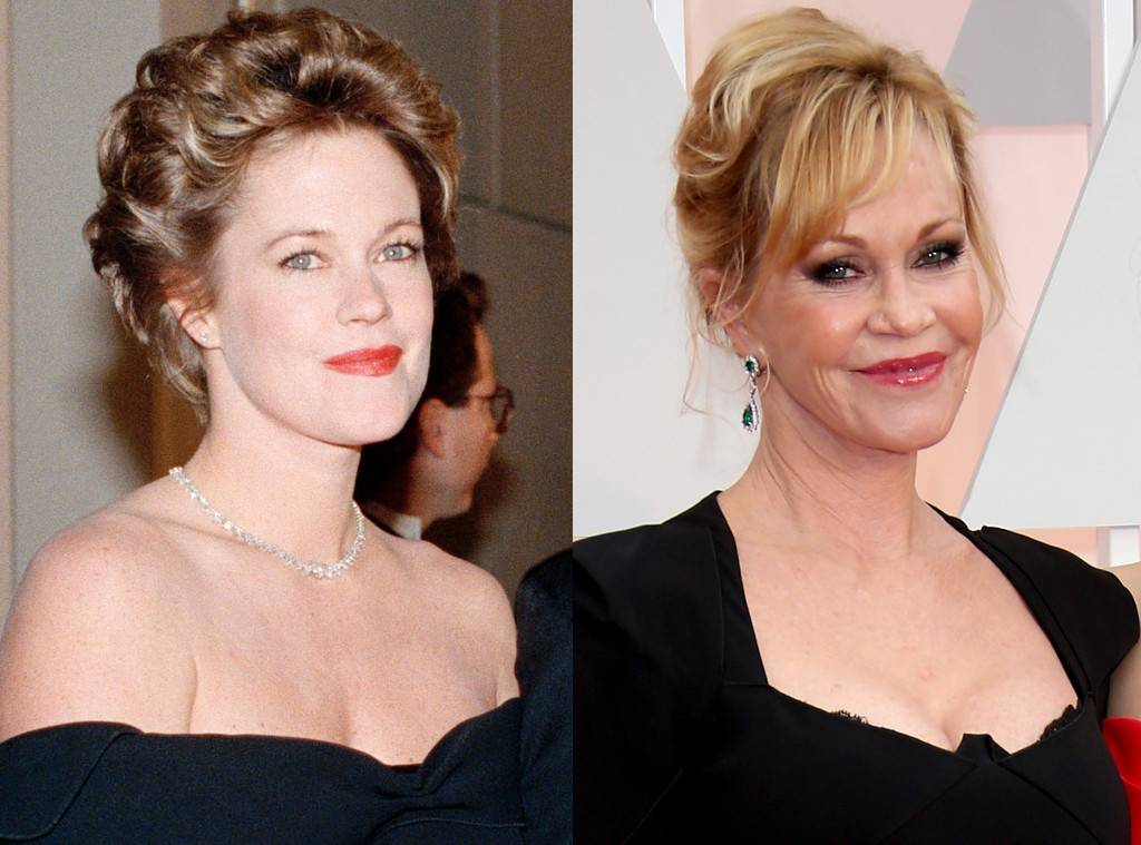 Melanie Griffith Plastic Surgery Before And After photo - 1