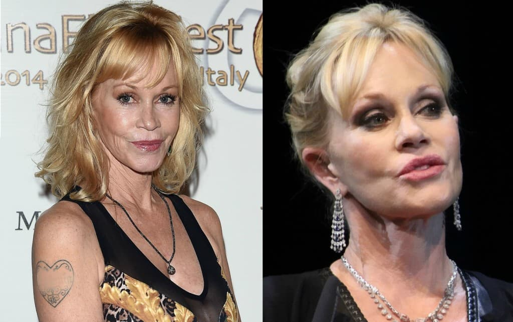 Melanie Griffith Plastic Surgery Photos Before After photo - 1