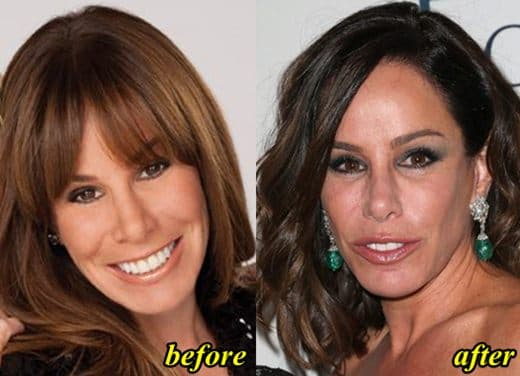 Melissa Rivers Before Plastic Surgery photo - 1