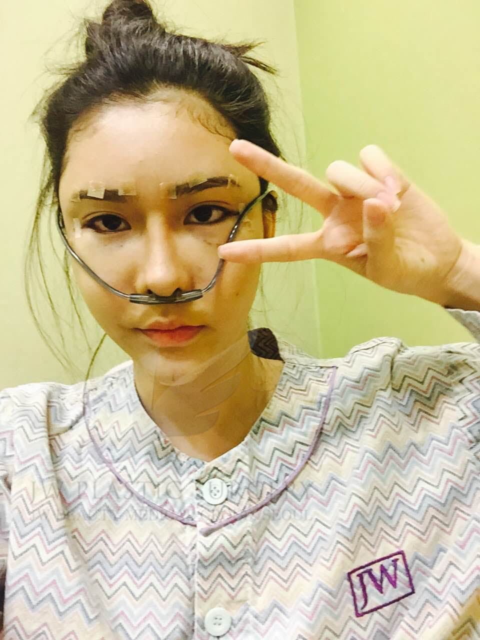 Melody Low Before Plastic Surgery photo - 1