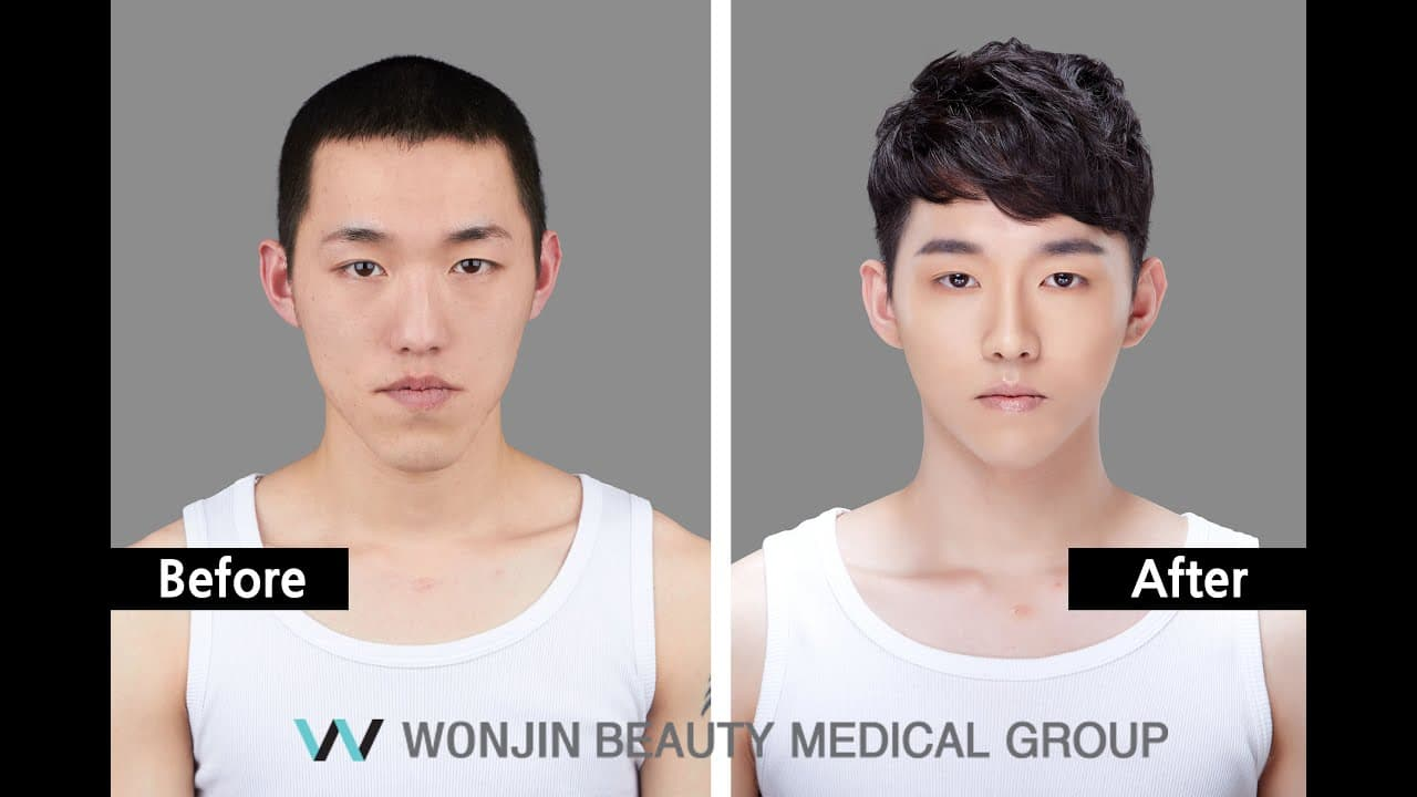 Men Korea Before And After Plastic Surgery photo - 1
