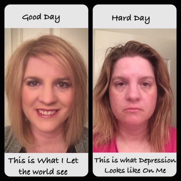 Mental Health Before Plastic Surgery photo - 1