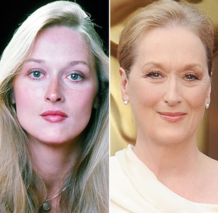 Meryl Streep Plastic Surgery Before And After photo - 1