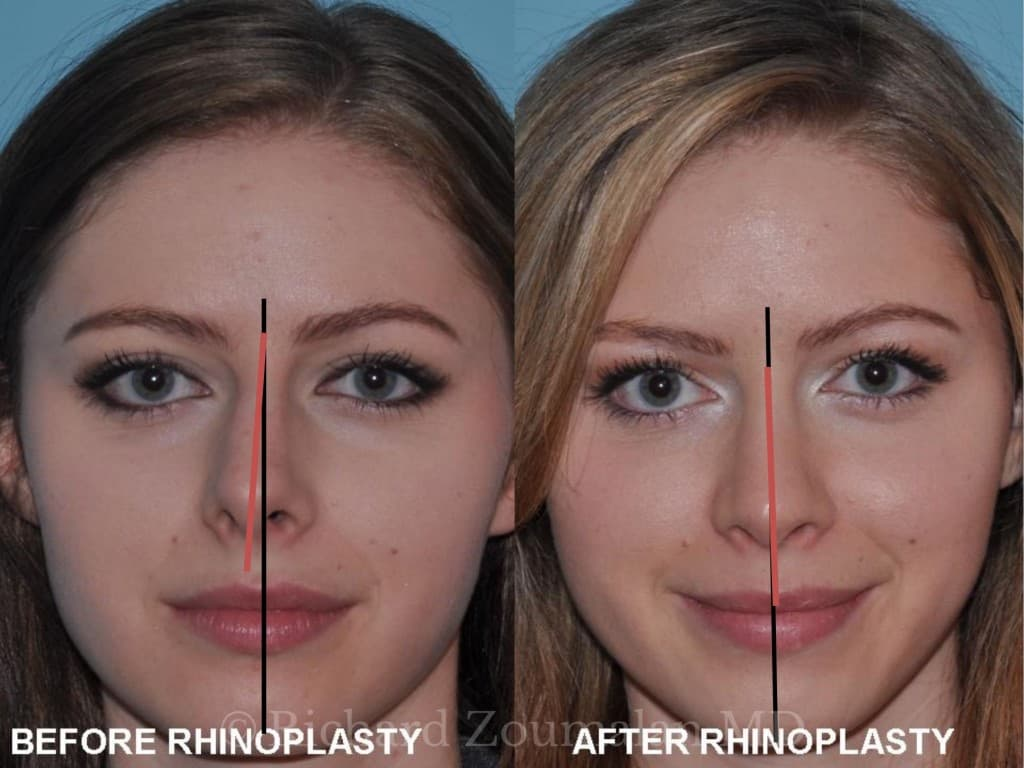 Mexico Plastic Surgery Before And After photo - 1