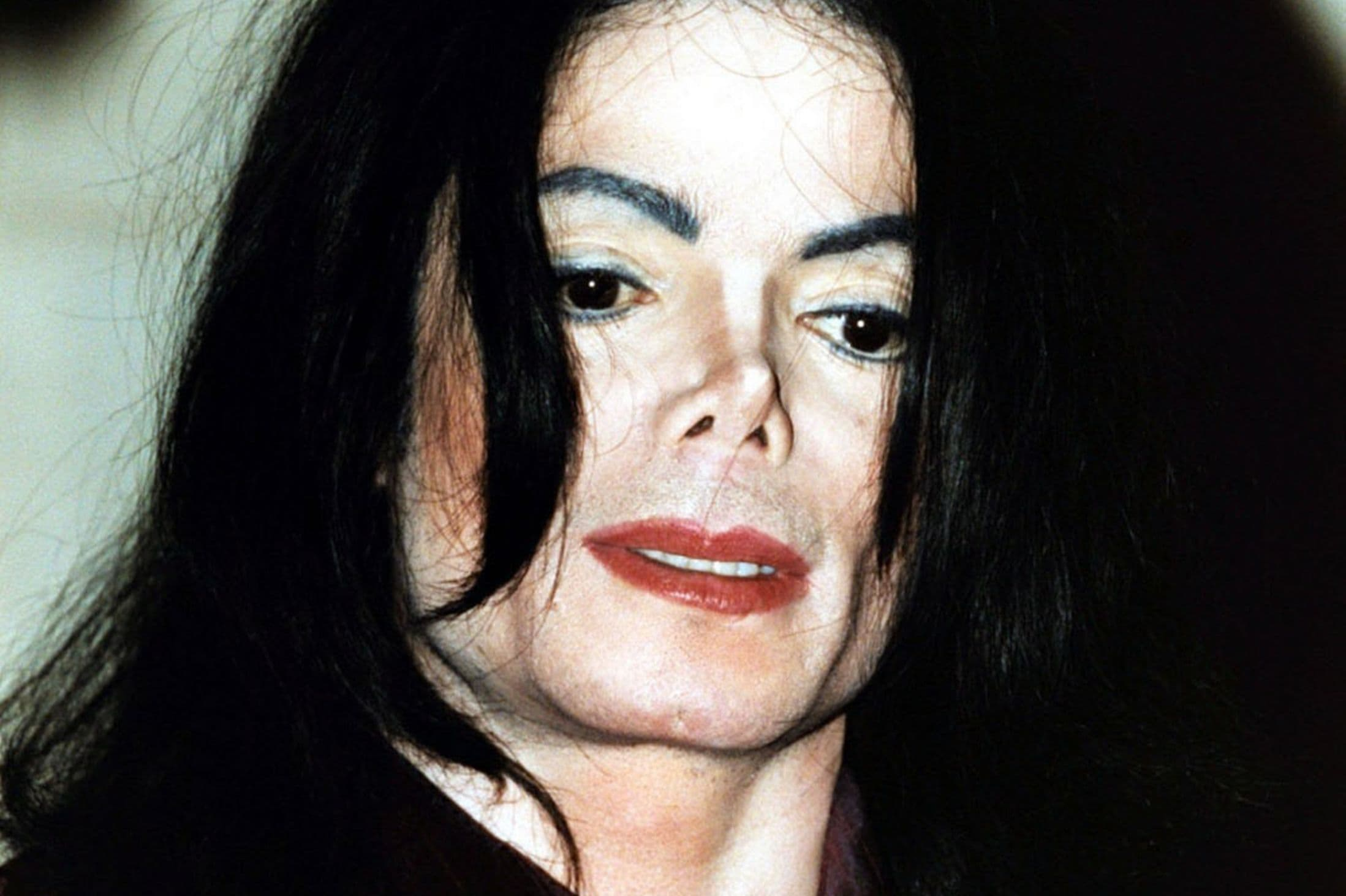 Michael Jackson Before After Plastic Surgery photo - 1