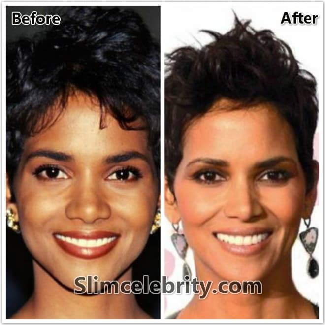 Michelle Obama Before And After Plastic Surgery photo - 1