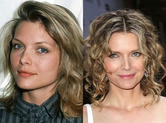 Michelle Pfeiffer Plastic Surgery Before After photo - 1