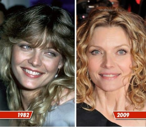 Michelle Pfeiffer Plastic Surgery Before And After photo - 1