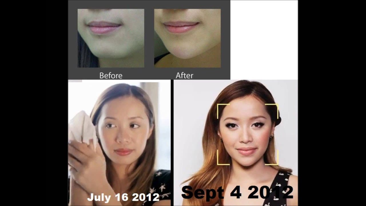 Michelle Phan Plastic Surgery Before And After photo - 1