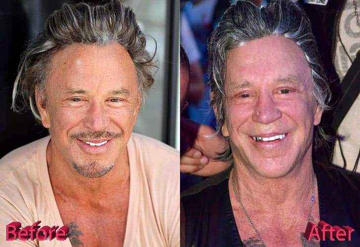 Mickey Rourke Before After Plastic Surgery 2017 photo - 1