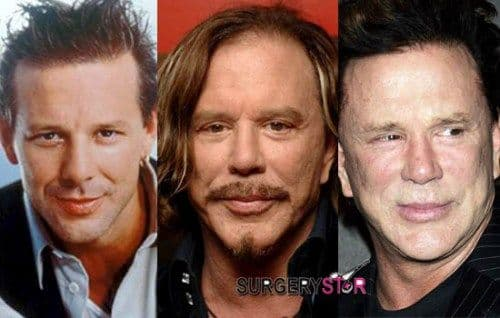 Mickey Rourke Photos Before Plastic Surgery photo - 1
