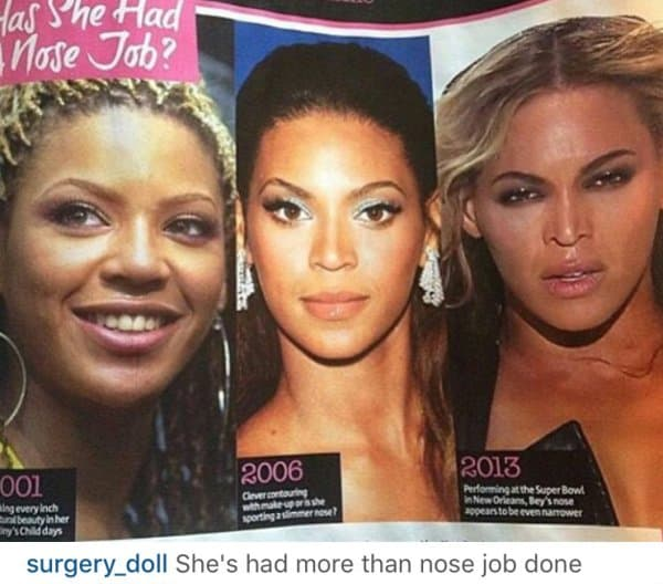 Miraclw Watts Before And After Plastic Surgery photo - 1