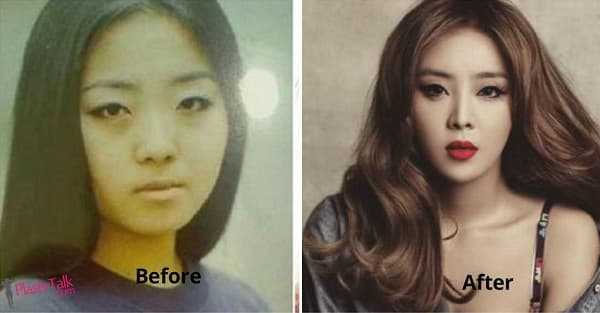 Miryo Before Plastic Surgery photo - 1