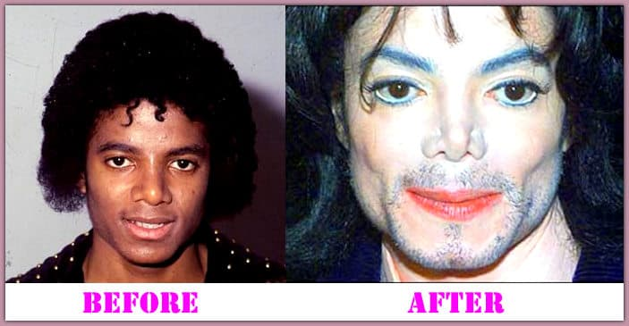 Mj Before Plastic Surgery photo - 1