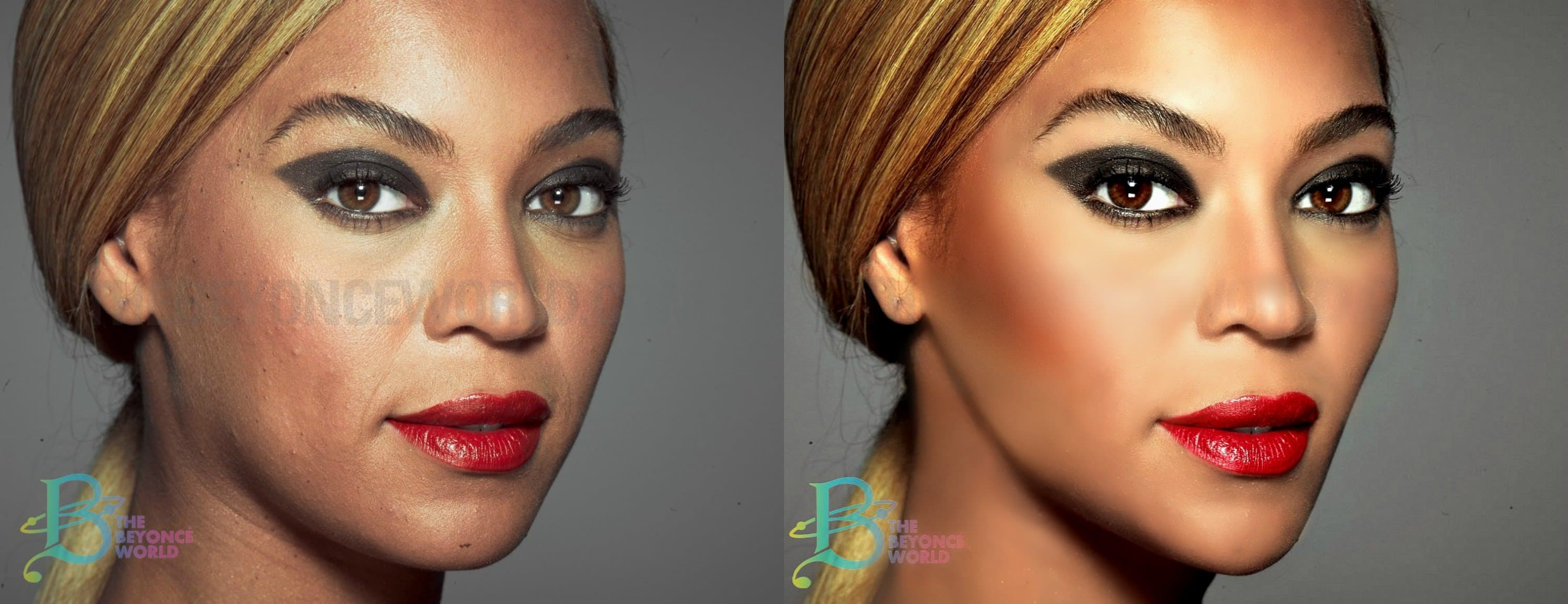 Models Plastic Surgery Before And After photo - 1