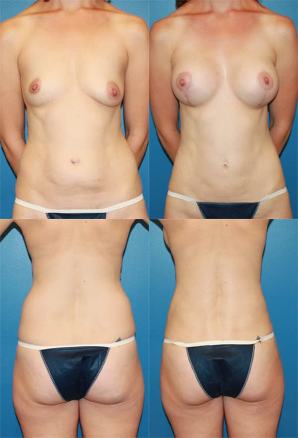 Mommy Makeover Plastic Surgery Before After photo - 1