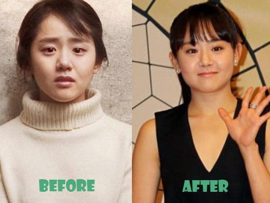 Moon Geun Young Plastic Surgery Before And After photo - 1