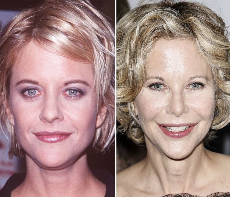 Movie Stars Before And After Plastic Surgery photo - 1
