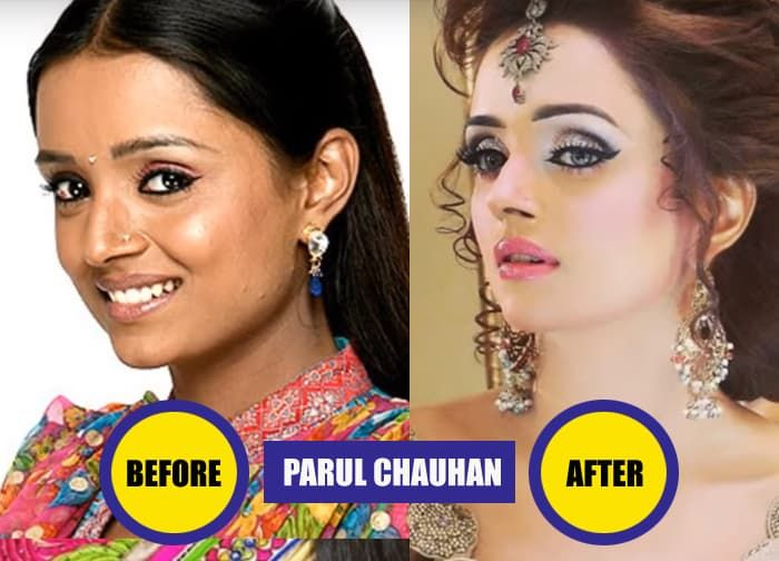 Naagin Actress Before Plastic Surgery photo - 1