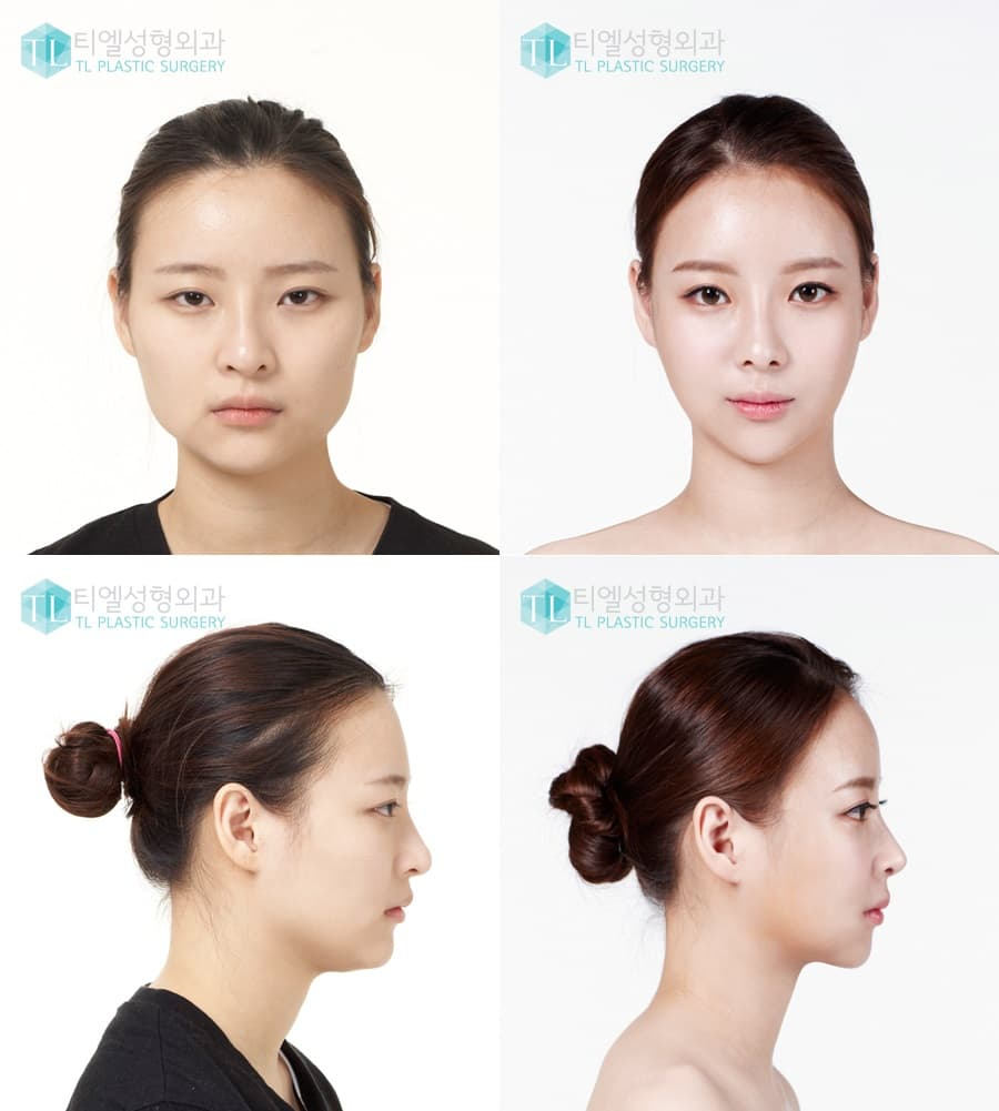 Nana Plastic Surgery Before And After photo - 1