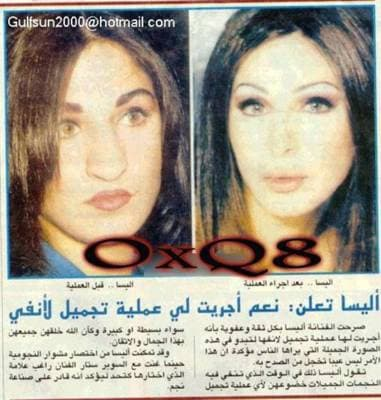 Nancy Ajram Before And After Plastic Surgery photo - 1