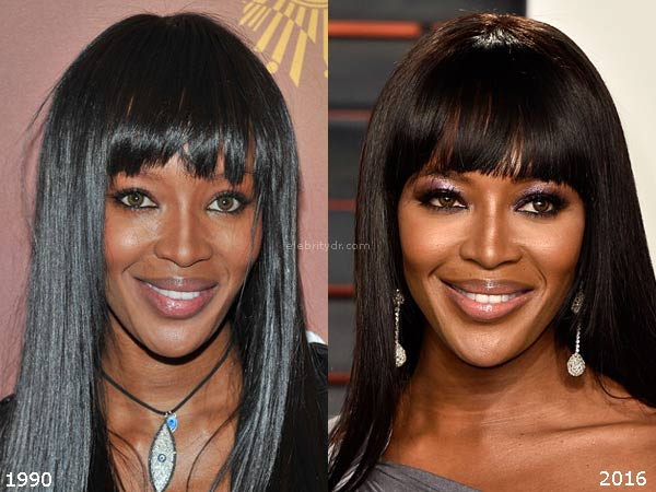 Naomi Campbell Before Plastic Surgery photo - 1