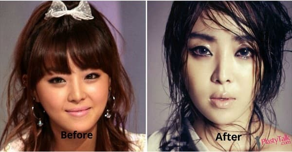 Narsha Before Plastic Surgery photo - 1