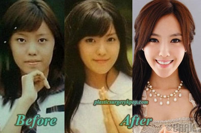 Narsha Plastic Surgery Before And After photo - 1