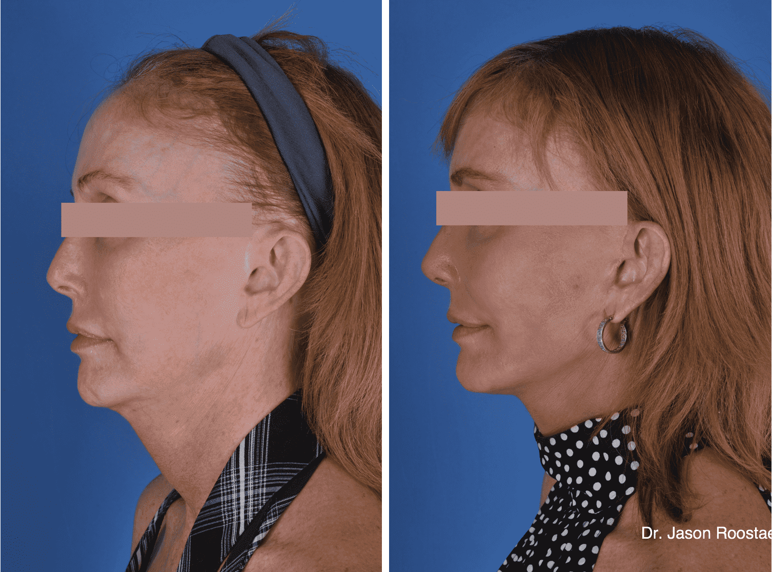 Natural Looking Plastic Surgery Before And After photo - 1