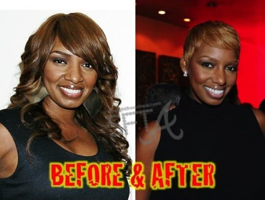 Nene Leakes Before & After Plastic Surgery Pics photo - 1