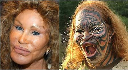 New Life Plastic Surgery Philippines Before After photo - 1