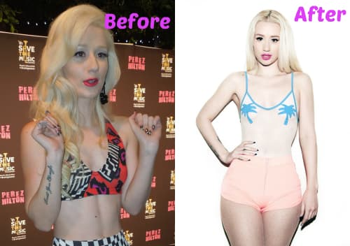 Nicki Minaj Before And After Plastic Surgery photo - 1
