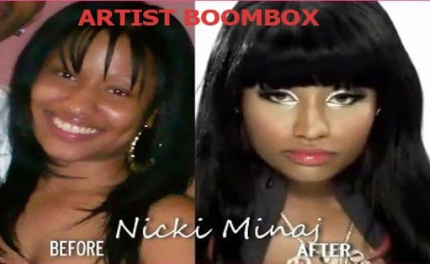 Nicki Minaj Before Plastic Surgery Pic photo - 1