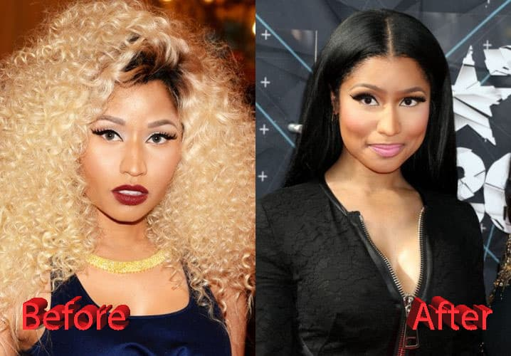 Nicki Minaj Before Plastic Surgery Pics photo - 1